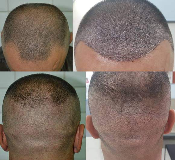 hair transplant after days 2