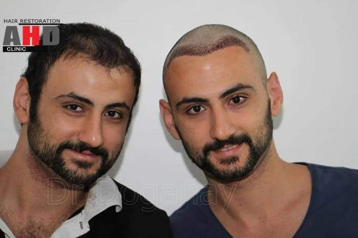 Hair Transplant From Another Donor