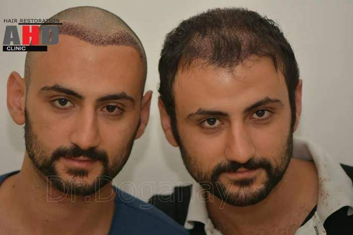 Hair Transplant From Another Person